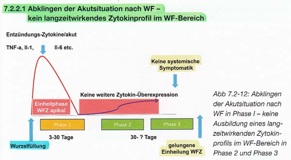 Neuraltherapie & Zahn-Störfelder